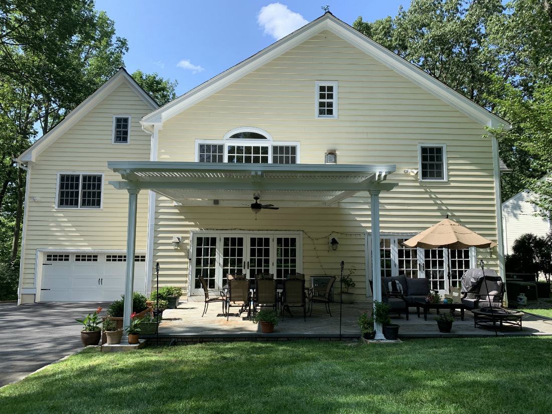 Louvered Roof Retractable Pergola Summit Nj Union County